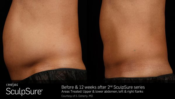 sculpsure | Jersey Shore